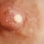 Маммограмма женской груди с Би Радс 2
