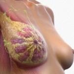 Радиотерапия при раке молочной железы