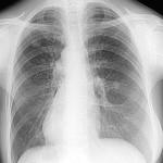Гинекомастии без операции